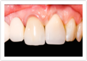 Mesa Dental Bridges